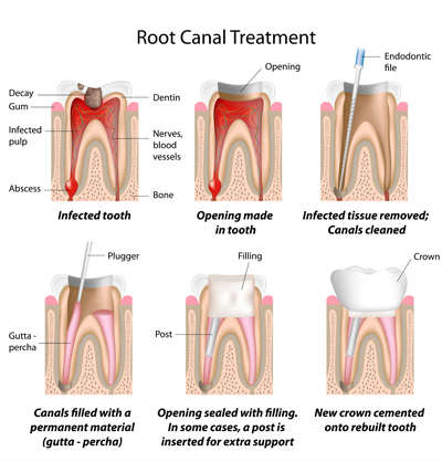 PDM_Root-Canal-Procedure_thumb26