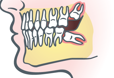 PDM_Wisdom Teeth Extraction